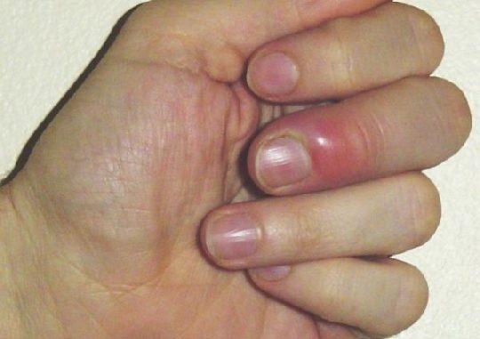 η παρωνυχία είναι μια σοβαρή μόλυνση που μπορείς να πάθεις αν τρως τα νύχια σου