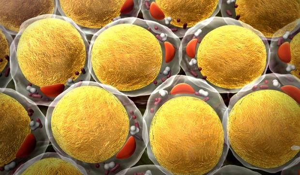 το χρόνιο άγχος οδηγεί στη δημιουργία κυττάρων λίπους