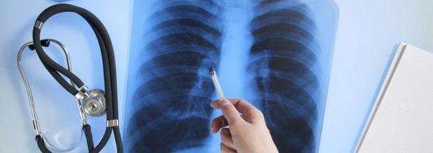 Τι είναι ο καρκίνος του πνεύμονα και τι συμπτώματα έχει;