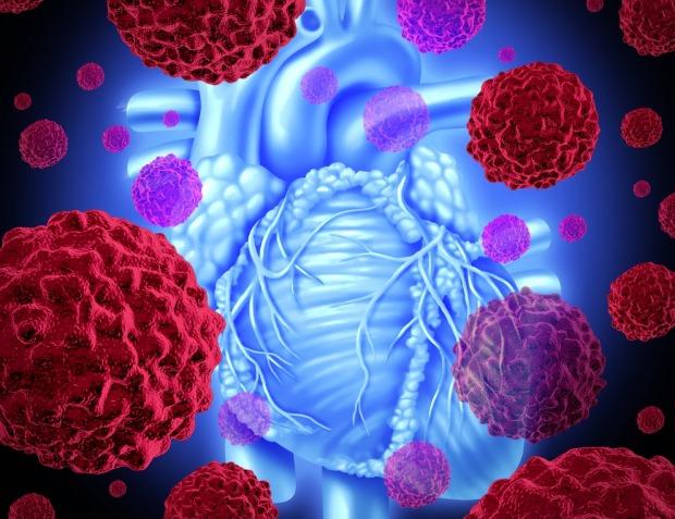 πως λέγεται ο καρκίνος στην καρδιά