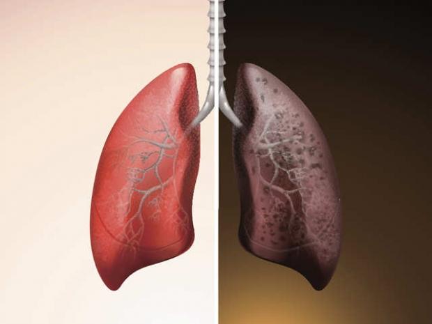 πως είναι τα πνευμόνια των καπνιστών