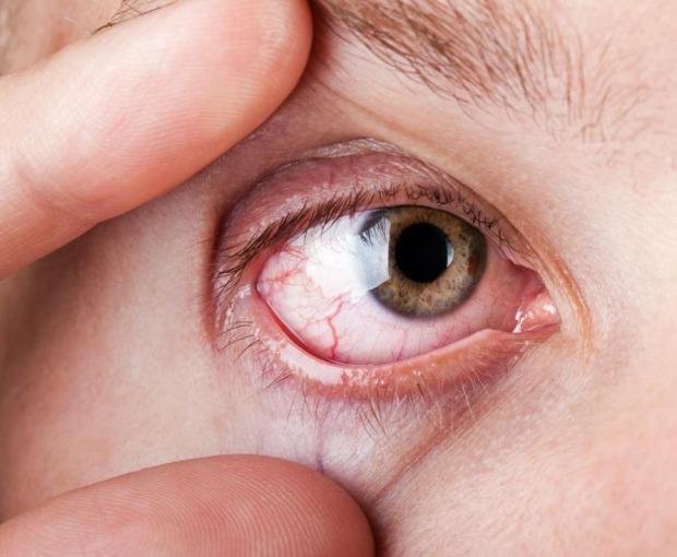 πως εμφανίζεται η ξηροφθαλμία