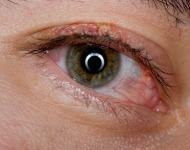 ερεθισμένα μάτια