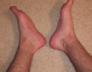 πόδια μυρίζουν άσχημα