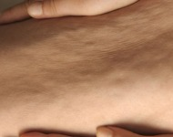 καταπολέμηση κυτταρίτιδας