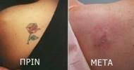 αφαίρεση τατουάζ