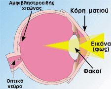 μάτι με μυωπία