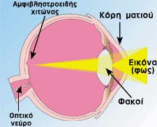 μάτι χωρίς μυωπία