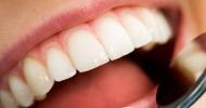λεκέδες στα δόντια
