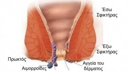 που βρίσκονται οι αιμορροΐδες