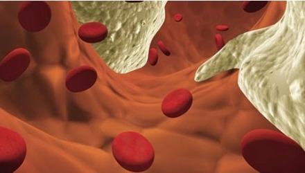 σχηματική αναπαράσταση της ομοκυστεΐνης