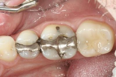 σφραγίσματα στα δόντια